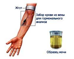 17-оксикортикостероиды, моча кленбутерол и мебикар