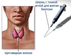 Пункцианальная биопсия щитовидной железы